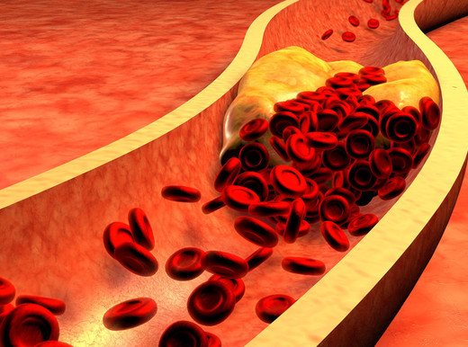 Cosa sai del colesterolo?