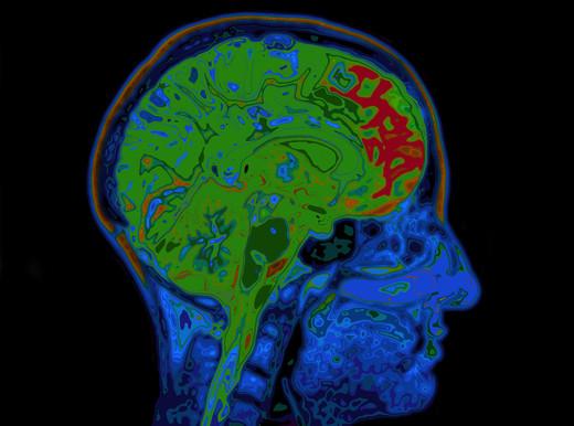 Perché il cervello è a rischio?