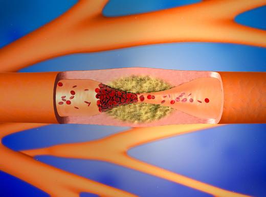 Come si cura la fibrillazione atriale