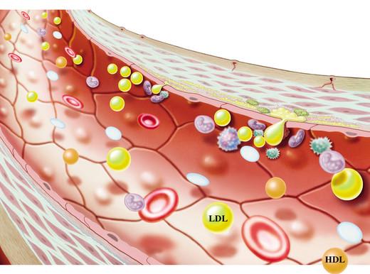 Misura il colesterolo buono e cattivo