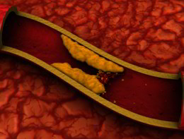 I superfarmaci per il colesterolo riducono il rischio di mortalità