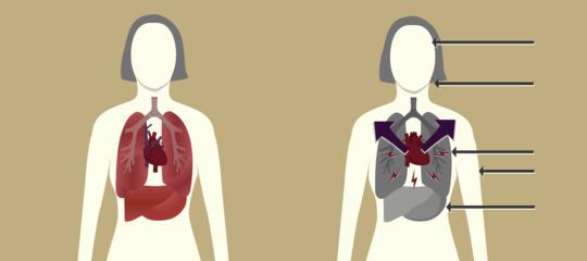 L'infarto del miocardio