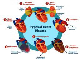 Come si complica l'infarto