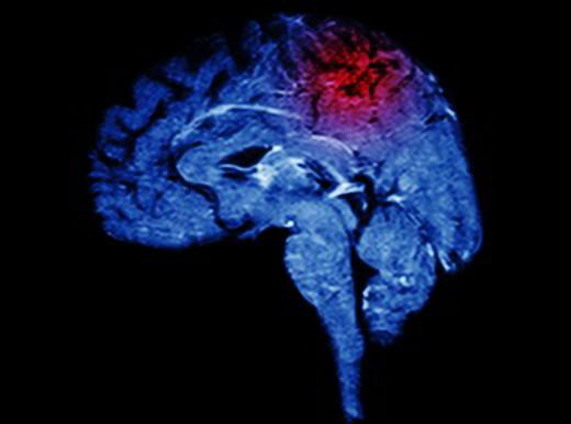 Come nasce un'emorragia cerebrale?
