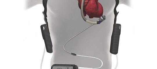 """Funziona sempre meglio il """"cuoreartificialedi riserva"""""""