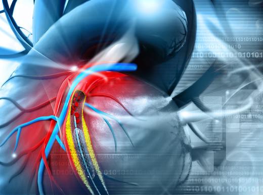 Risultati immagini per arterie coronariche