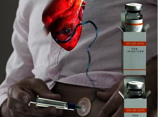 """Un """"cerotto"""" a lento rilascio di staminali per proteggere il cuore dopo l'infarto"""