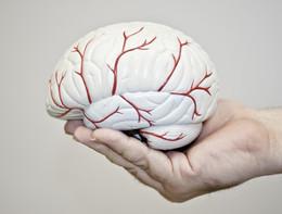 Ictus cerebrale, attenzione alle forme più rare