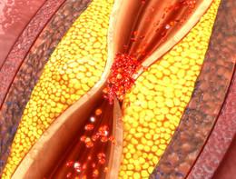 Nuove opzioni per limitare il rischio di trombosi dopo l'angioplastica