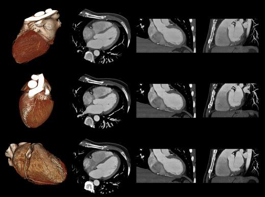 Tac ocoronarografiaper studiare le arterie del cuore?