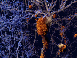 Svelato il segretodell'amiloidosicardiaca