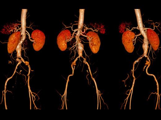 Svelati i geni dell'aneurisma dell'aorta addominale