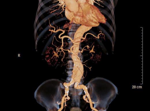 Non solo bisturi per l'aneurisma dell'aortaaddominale