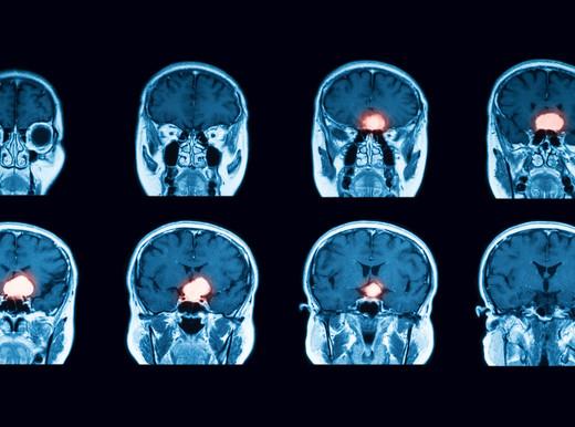 """Un'operazione impegnativa da anziani aumenta il rischio di ictus """"silenzioso"""""""