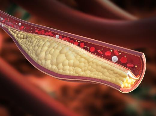 In arrivo un nuovo farmaco per l'ipercolesterolemia familiare omozigote