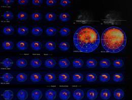 Morte improvvisa, la risonanza magnetica aiuta a scoprire l'aritmia maligna