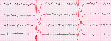 La radioterapia di precisione combatte le gravi aritmie dei ventricoli