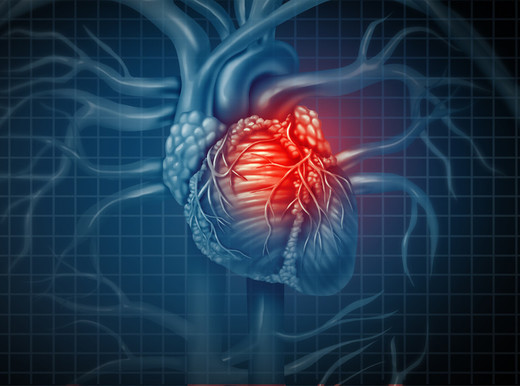 Ricerca italiana a caccia dei segreti dellaplaccache provoca l'infarto