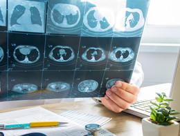Ipertensione polmonare, la cura arriva a casa