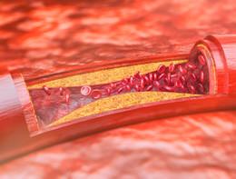 Aterosclerosi, una spia nel sangue la scopre quando non dà segni