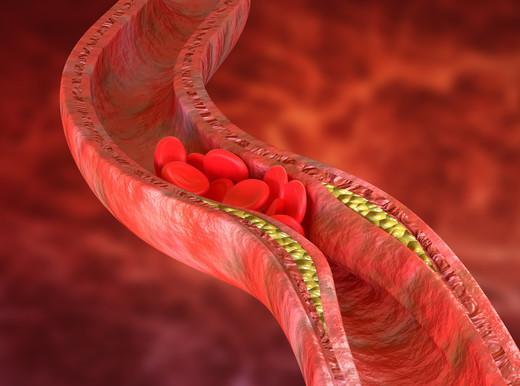Aterosclerosi, nuovi marcatori dei lipidi informano sul rischio infarto