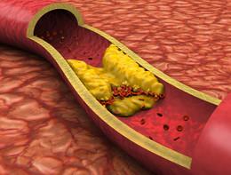 Ricerca italiana indaga i meccanismi che portano all'infarto