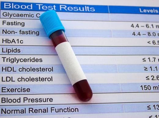 Colesterolo cattivo, difficile raggiungere i livelli ideali dopo l'infarto