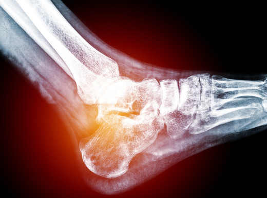L'osteoporosi potrebbe aumentare il rischio d'infarto