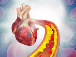 Non solo coronarie, perché l'aterosclerosi è una minaccia per il cuore