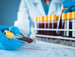 Trapianto di cuore, biopsia liquida per svelare il rischio rigetto