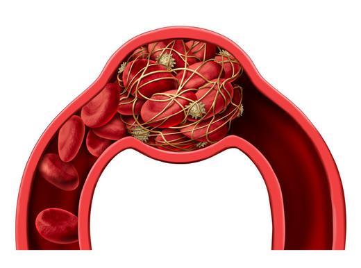 Cos'è il tromboembolismo venoso?